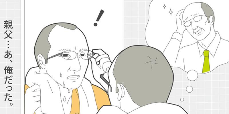 最近、父親に似てきた。うちの父親、薄毛だけど…(AGA)