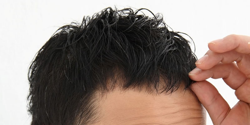 頭皮の乾燥が原因のフケ・かゆみと4つの対策~冬のケア編~