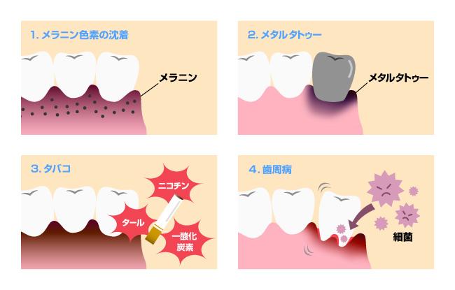 【イラスト】歯茎が黒ずむ4つの原因