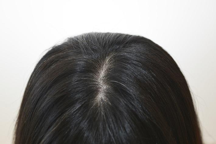 白髪が治る時代がやってくる!? 白髪研究の最前線と3つの自己ケア