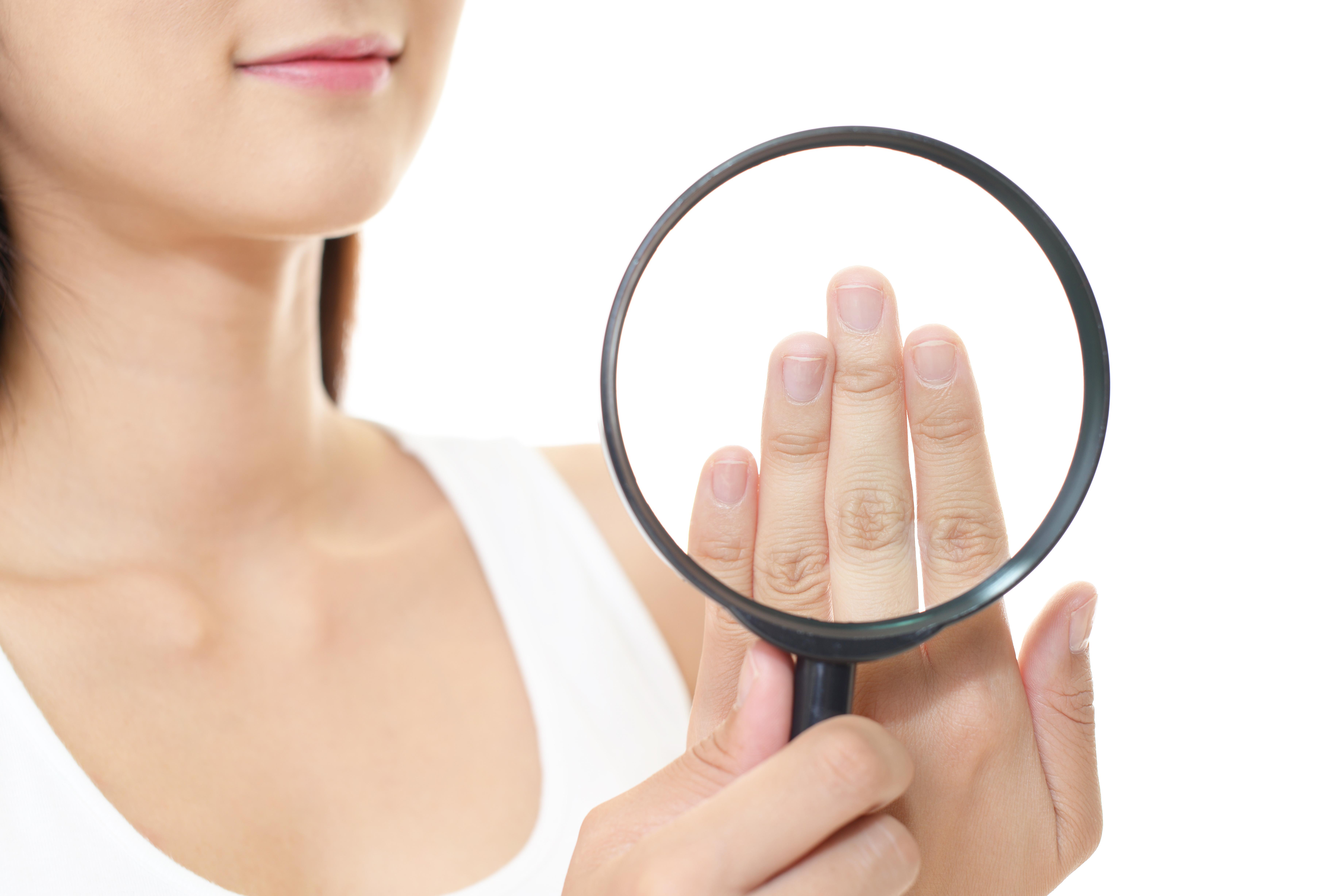 巻き爪、グリーンネイル、爪白癬……身近な爪のトラブルはこうして治す