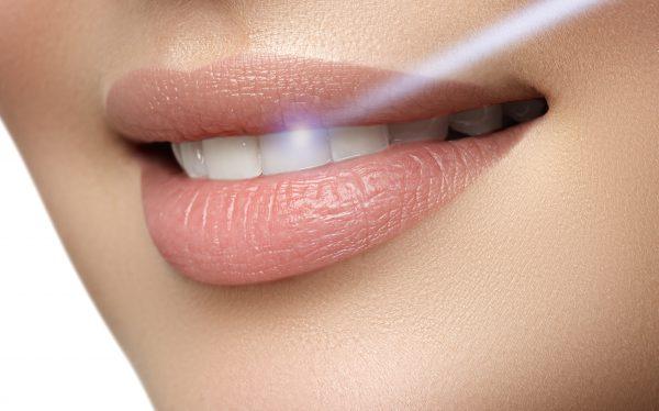 レーザー照射で歯茎のメラニン除去をする女性