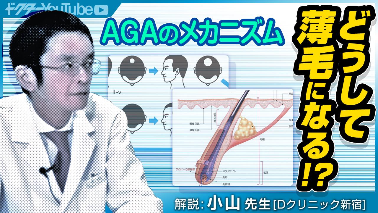AGAのメカニズムを専門家・小山太郎先生が解説!