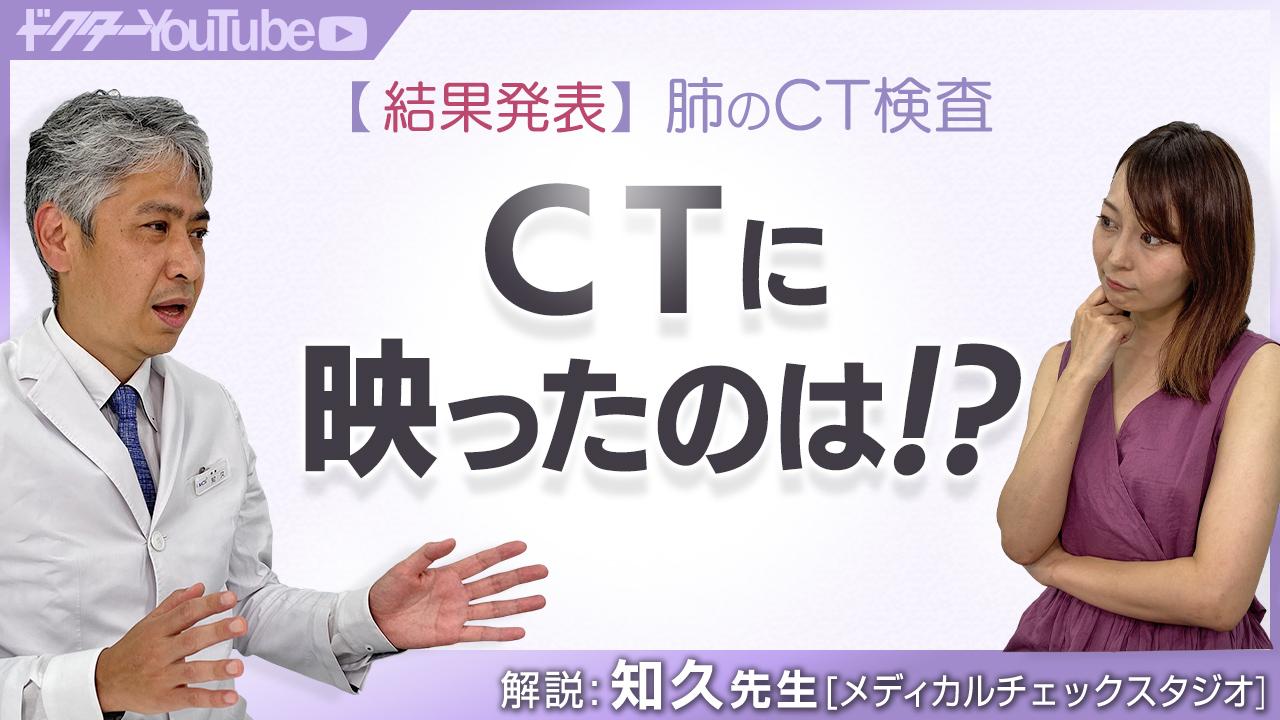 肺のCT検査の結果発表!メディカルチェックスタジオ院長の知久正明先生が解説