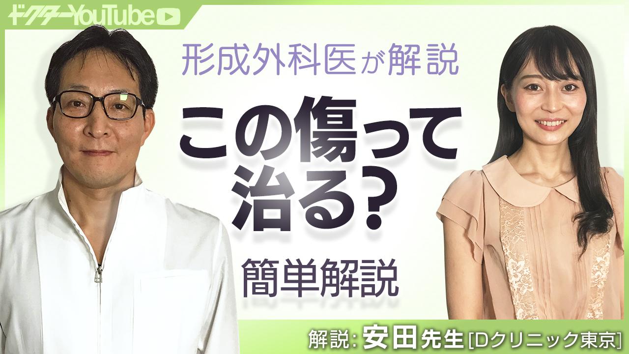 スリ傷、切り傷、噛み傷など外傷について形成外科医の安田吉宏先生が解説