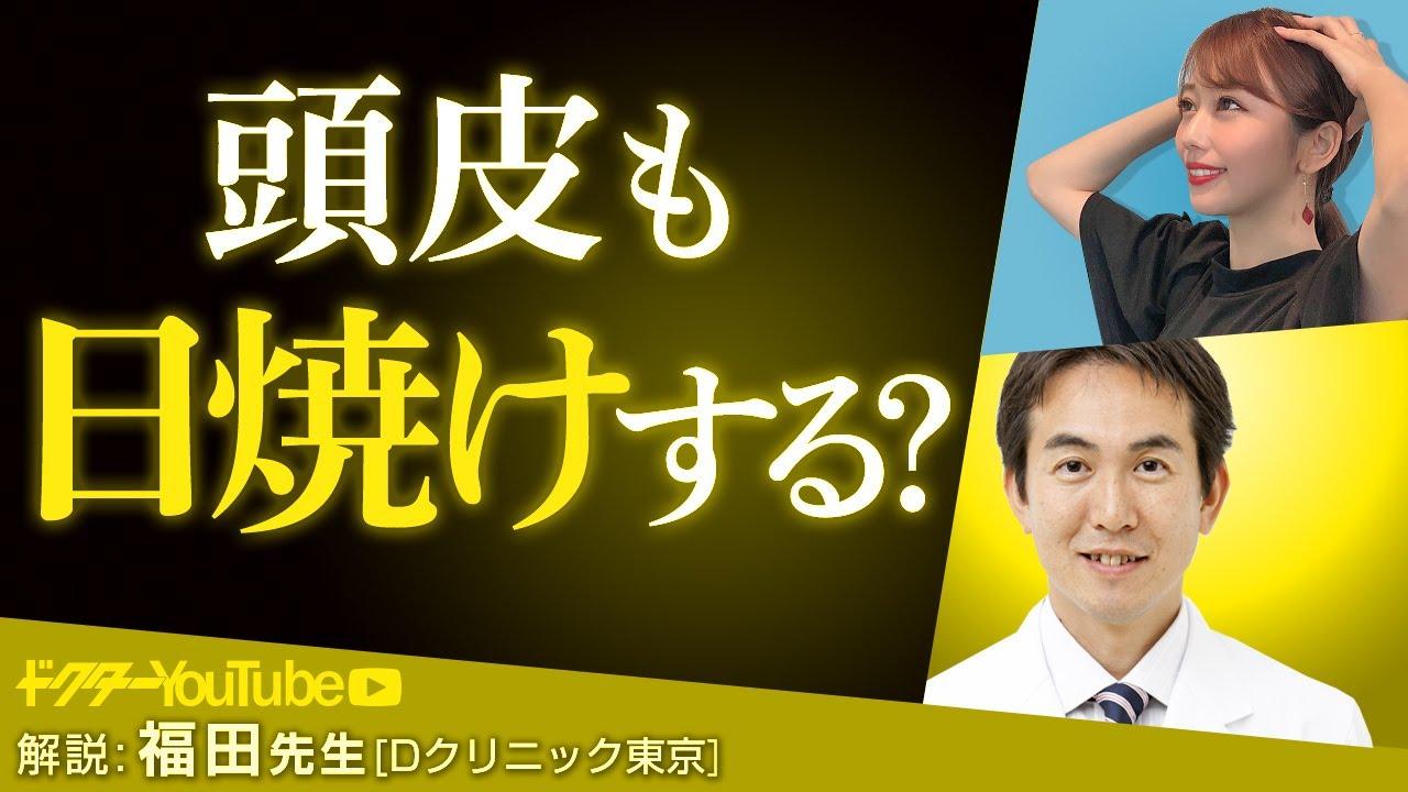 頭皮の日焼け対策を頭髪の専門家・福田康孝先生が解説