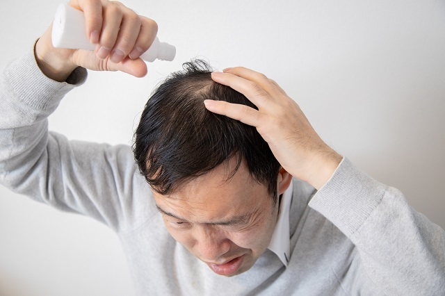 薄毛に効く薬は育毛剤ではなく発毛剤!